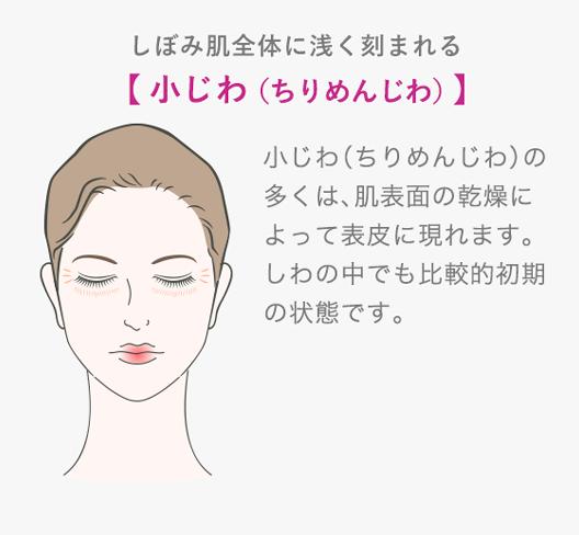 しぼみ肌全体に浅く刻まれる 小じわ(ちりめんじわ)小じわ(ちりめんじわ)の多くは、肌表面の乾燥によって表皮に現れます。しわの中でも比較的初期の状態です。