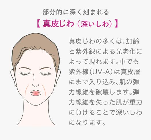 真皮じわ(深いしわ)真皮じわの多くは、加齢と紫外線による光老化によって現れます。中でも紫外線(UV-A)は真皮層にまで入り込み、肌の弾力線維を破壊します。弾力線維を失った肌が重力に負けることで深いしわになります。