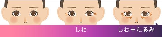 しわ→しわ+たるみ