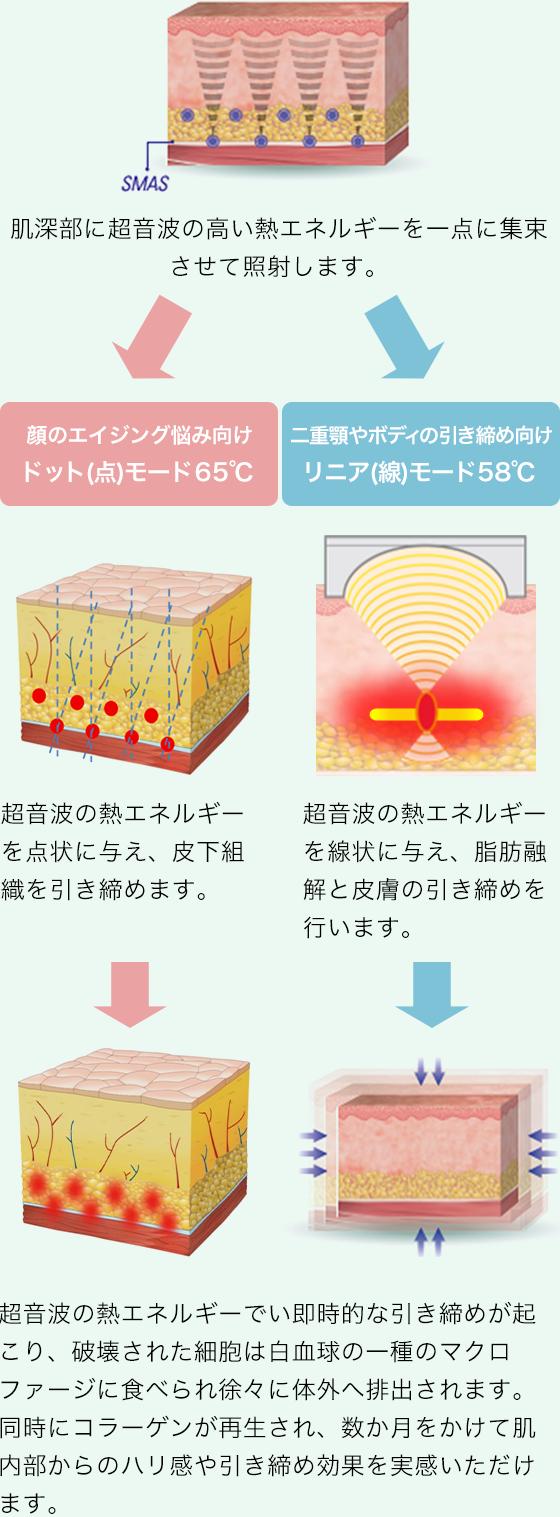 肌深部に超音波の高い熱エネルギーを一点に集束させて照射します。 超音波の熱エネルギーを点状に与え、皮下組織を引き締めます。 超音波の熱エネルギーを線状に与え、脂肪融解と皮膚の引き締めを行います。 超音波の熱エネルギーでい即時的な引き締めが起こり、破壊された細胞は白血球の一種のマクロファージに食べられ徐々に体外へ排出されます。同時にコラーゲンが再生され、数か月をかけて肌内部からのハリ感や引き締め効果を実感いただけます。
