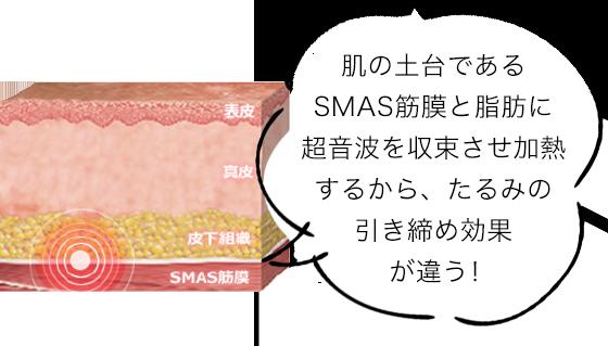 肌の土台であるSMAS筋膜と脂肪に超音波を収束させ加熱するから、たるみの引き締め効果が違う!
