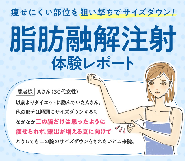 痩せにくい部位を狙い撃ちでサイズダウン! 脂肪融解注射体験レポート 患者様 Aさん(30代女性)以前よりダイエットに励んでいたAさん。他の部分は順調にサイズダウンするもなかなか二の腕だけは思ったように痩せられず。露出が増える夏に向けてどうしても二の腕のサイズダウンをされたいとご来院。