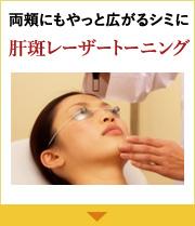 両頬にもやっと広がるシミに 肝斑レーザートーニング