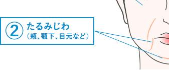 ②たるみじわ(頬・顎下・目元など)